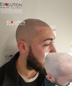 client scalp micropigmentation result