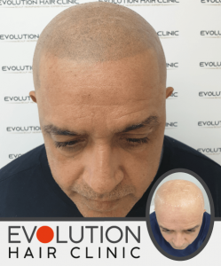 scalp micropigmentation treatment result