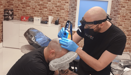 man carrying out a scalp micropigmentation treatment