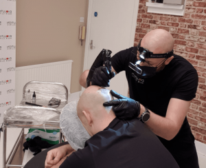 artist carrying out a scalp micropigmentation treatment