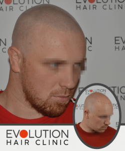 scalp micropigmentation after result