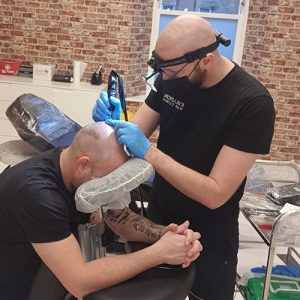 man carrying out scalp micropigmentation