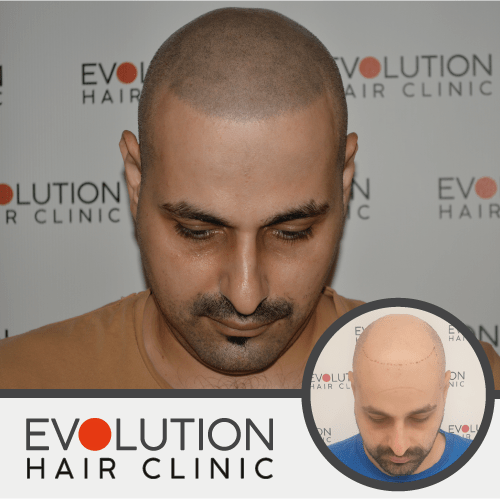 results image of scalp micropigmentation