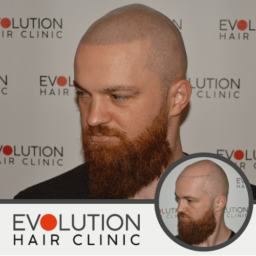 after result of scalp micropigmentation