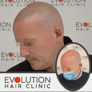 smp result from the right hand side of the scalp