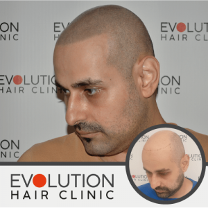 the after results of scalp micro pigmentation