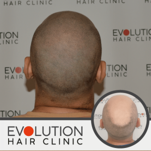 scalp micropigmentation after treatment result