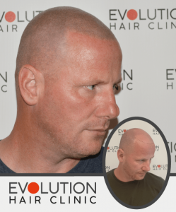 scalp micropigmentation result from the right