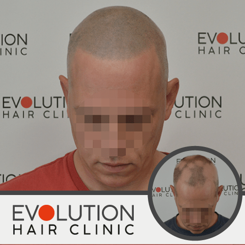 front few of after result scalp micropigmentation