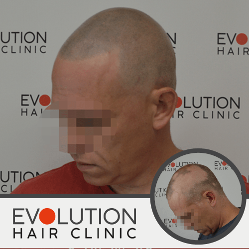after result for scalp micropigmentation for alopecia