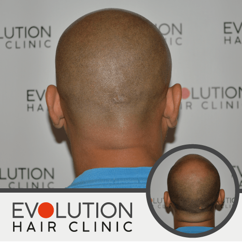 scalp micropigmentation result from the back