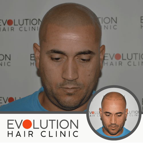front view of scalp micropigmentation after result