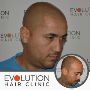 right hand view of scalp micropigmentation result