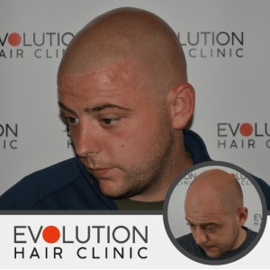 scalp micropigmentation result from the left hand side of the scalp