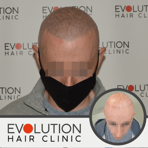 scalp micropigmentation after result front