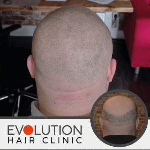after result scalp micropigmentation showing the back of the head