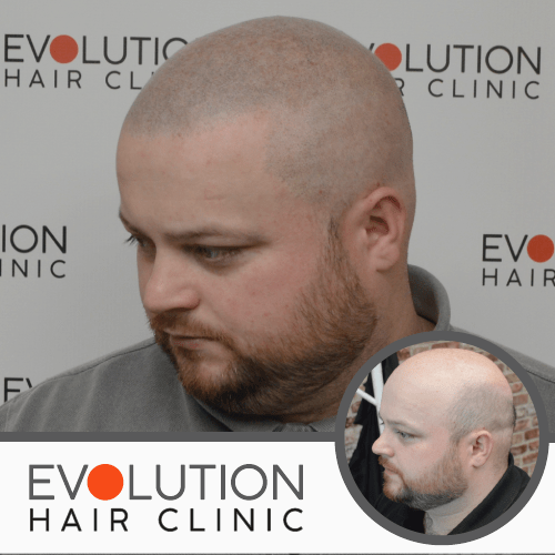 scalp micropigmentation result from the left hand side