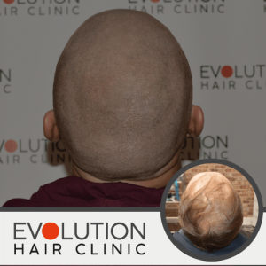 scalp micropigmentation result from rear