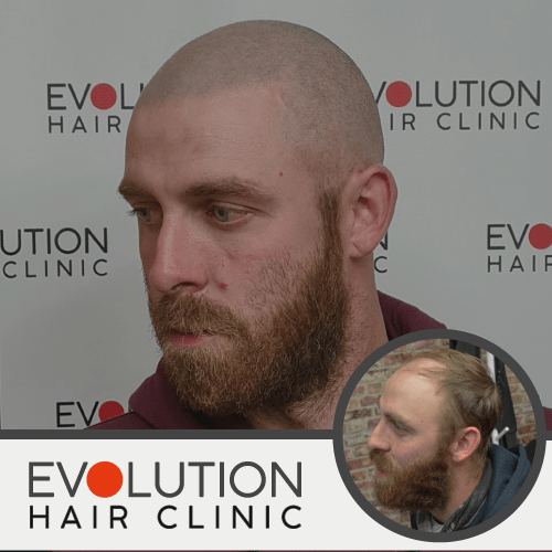 scalp micropigmentation after result from the left hand side of the face