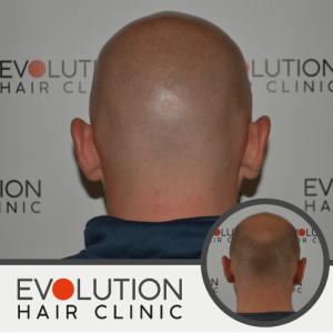 after result for scalp micropigmentation