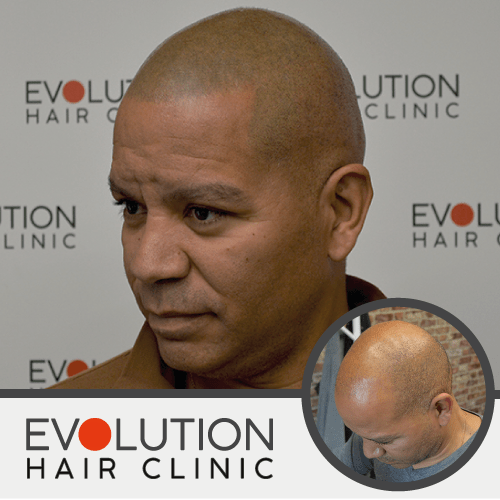 scalp micropigmentation result from the left hand side of the head