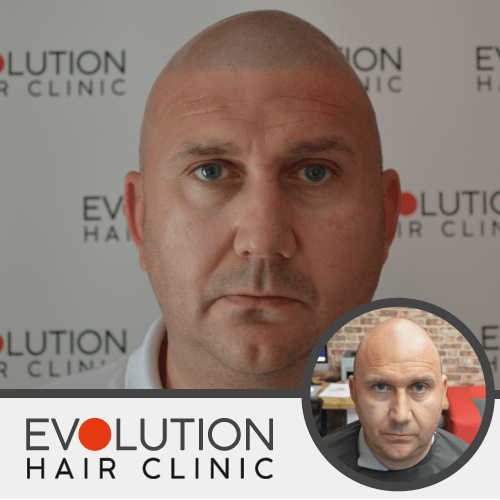 scalp micropigmentation result from the front of the head