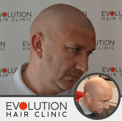 scalp micropigmentation result form the right hand side of the face