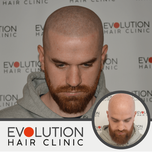 scalp micropigmentation result showing the top of the scalp