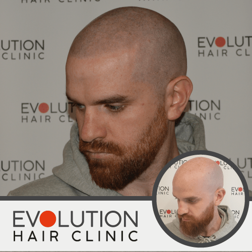 scalp micropigmentation after image showing the left hand side of the head