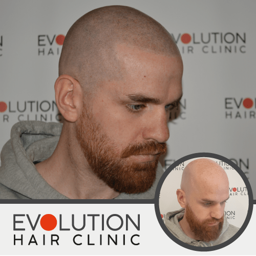 scalp micropigmentation after image from the right hand side