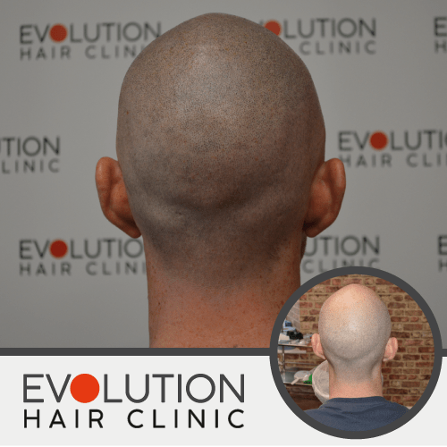 scalp micropigmentation result from the back angle