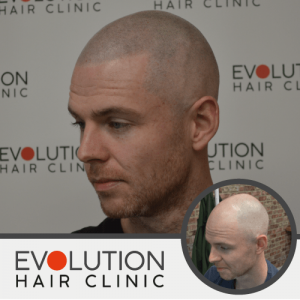 scalp micropigmetation result from left hand side