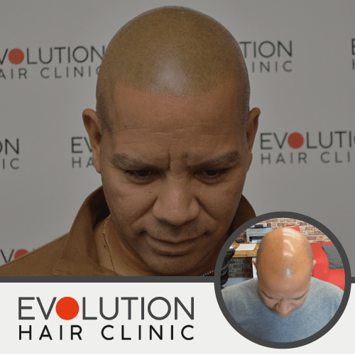 scalp micropigmentation result from the left