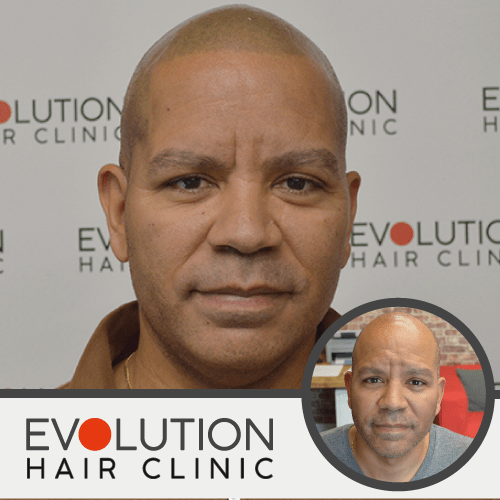 scalp micropigmentation result from the front