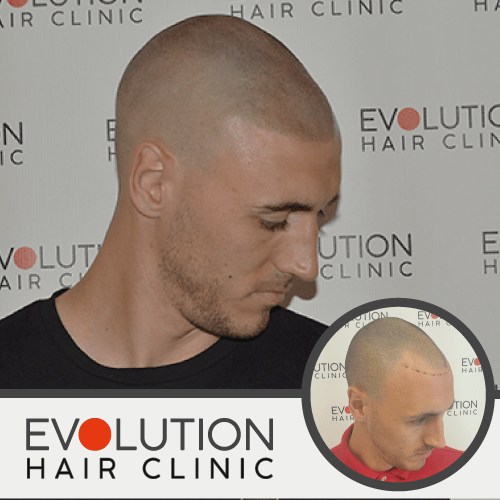scalp micropigmention result from the right hand side of the scalp