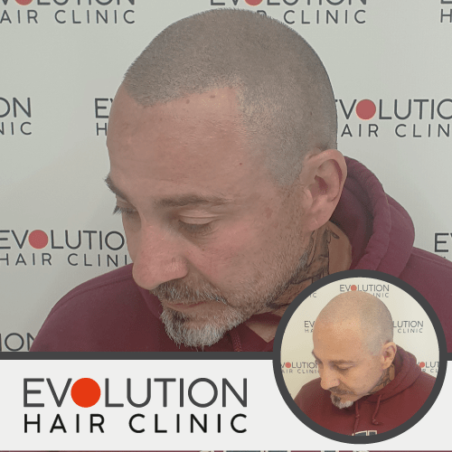 image of a client with scalp micropigmentation
