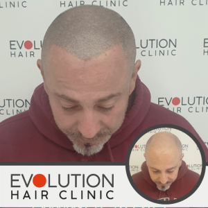 scalp micropigmentation result from the top of the scalp
