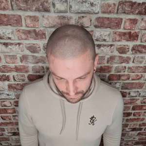 scalp micropigmentation result showing top of scalp
