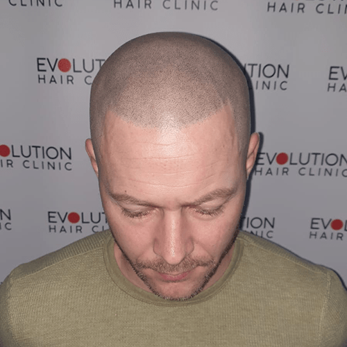 scalp micropigmentation close up from the front of the face