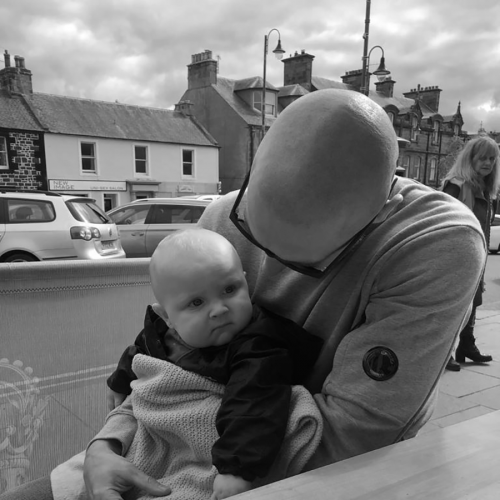 pic of scalp micropigmentation client with his baby