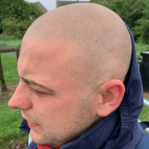detailed view of a clients scalp micropigmentation outside in a park