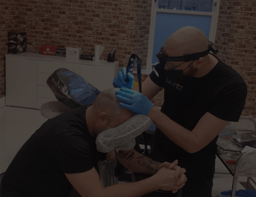 man performing scalp micropigmentation on a male client