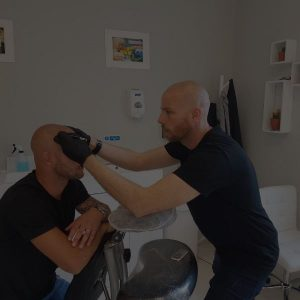 man drawing hair line on a client for scalp micropigmentation