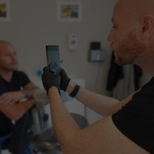 man taking before pictures of scalp micropigmentatioin with his phone