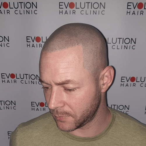 Scalp micropigmentation close up form the left handisde of the face