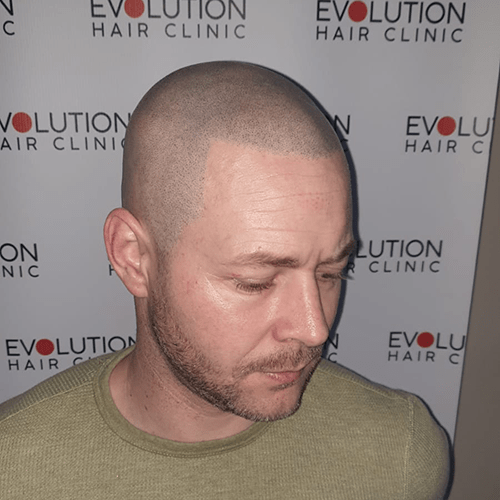 scalp micropigmnentation result from the right hand side of the face