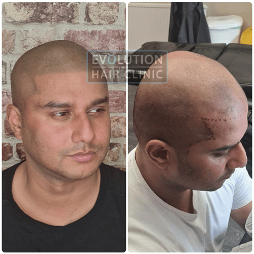 scalp micropigmentation before and after result